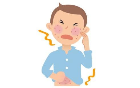 内服アレルギー用薬